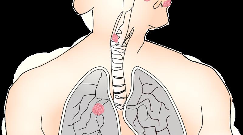 badanie płuca rak